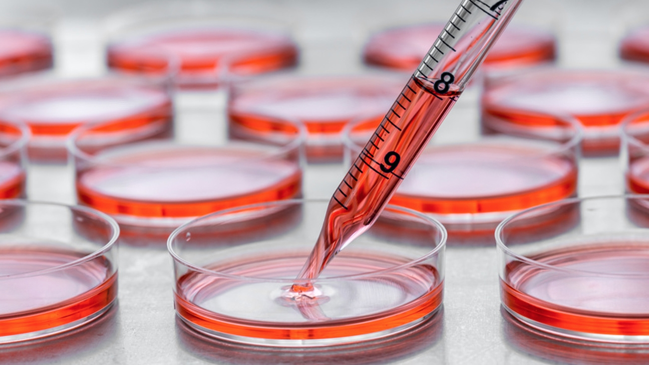Endotoxins – Innovative Solutions for Cell Culture Studies