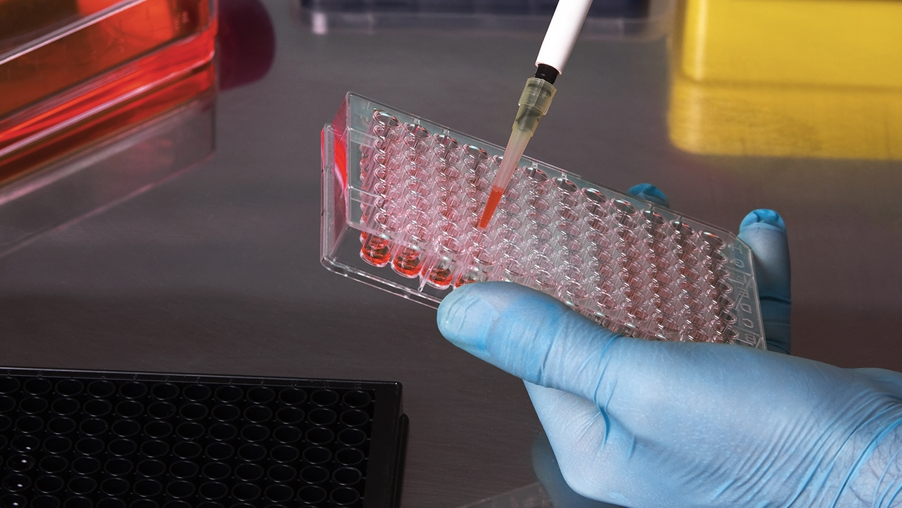 Immunologists Use ELISPOT Kits For Cost-Effective Screening
